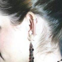 Ear Patient 4 side - before