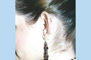 Ear Patient 10 - before