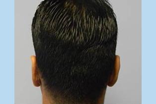 Ear Patient 6 back - after