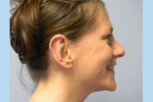Ear Patient 8 side - after