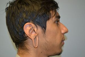 Gauged Earlobe Repair