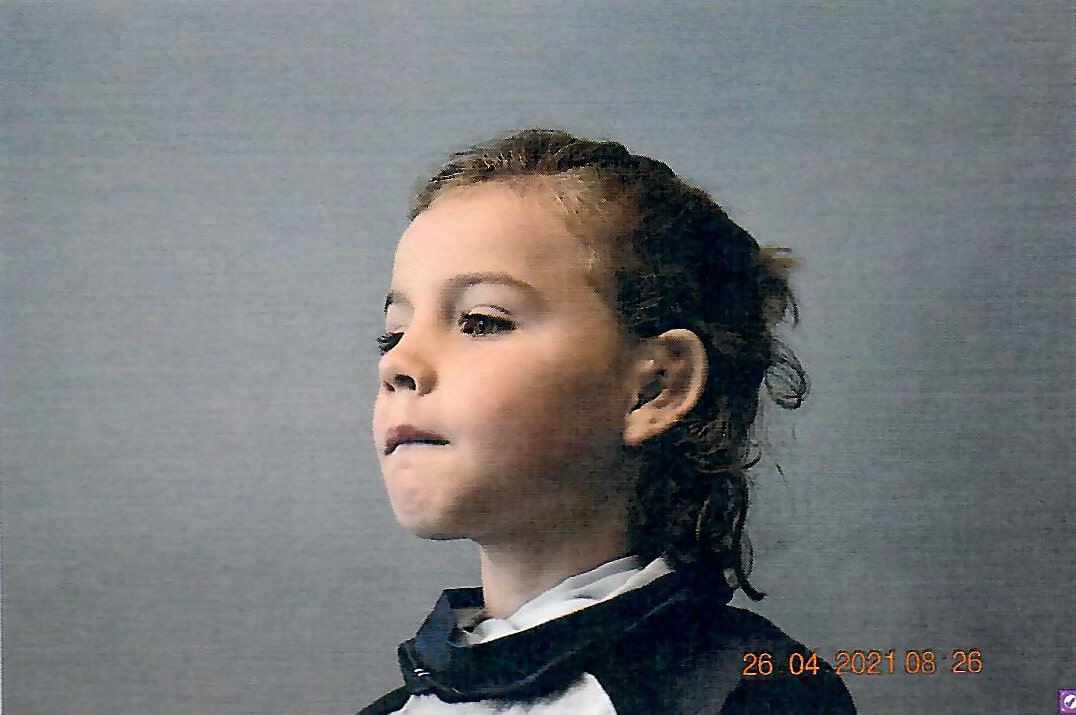 photo of patient before and after microtia ear surgery
